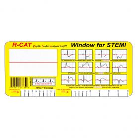 EKG Concepts R-CAT (Rapid-Cardiac Analysis Tool) Window for 12-Lead STEMI