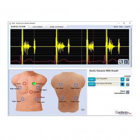 Cardionics SAM 3G Echocardiogram Videos Upgrade