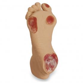 Life/form® Elderly Pressure Ulcer Foot - Light Skin
