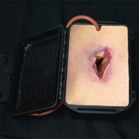 Techline® Shrapnel Wound in a Box