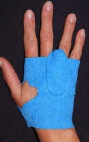 Tapeless Hand Dressing Holder System Med/Lrg 2/pk,10 pk/case