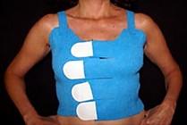 Tapeless Breast/Vest Dressing Holder System, Medium 10/case