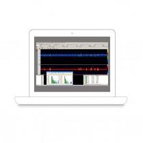 Emboli Detection Software